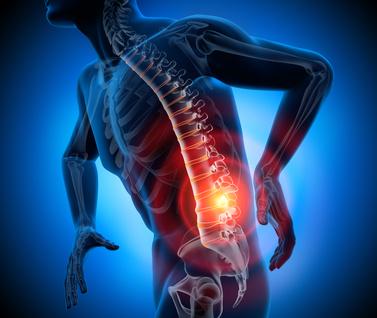 Mensch mit Rückenschmerzen